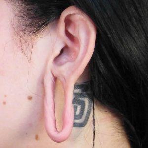 Ear300